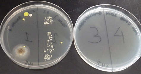 Hoe dood alcohol bacterien